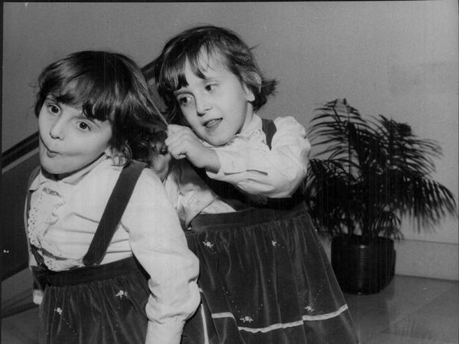 Divisa dalla sorella siamese nel 1965: «Vorrei abbracciare le piccole gemelle  algerine» Foto