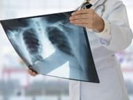Ipertensione polmonare  Che cos'è e come si cura