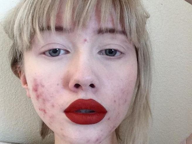 «L'acne non ti rende brutto, l'odio sì». La blogger spopola sul web