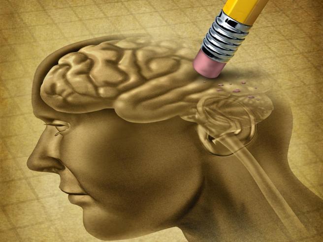 Alzheimer  malattia negletta, le aziende fermano la ricerca