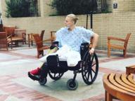 Amputata la seconda gamba alla modella vittima di uno choc tossico causato da un assorbente interno