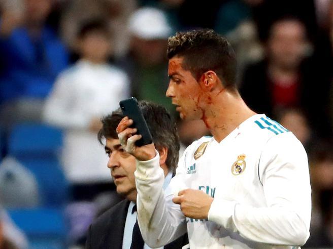 Cristiano Ronaldo, sangue in faccia dopo un calcio: si specchia nel telefonino per controllare i danni