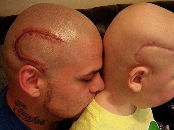 Muore Gabe, suo padre si tatuò cicatrice