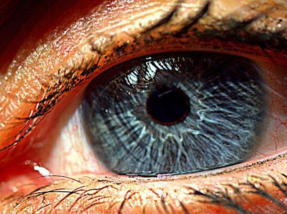 Retina artificiale contro la cecità: cos'è, come funziona e l'intervento
