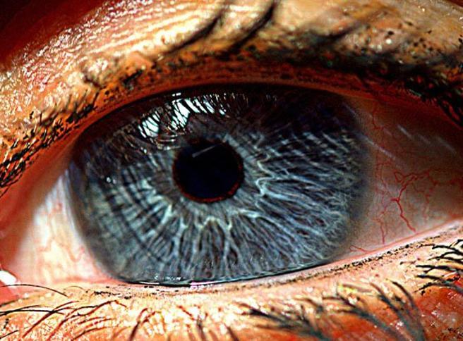 Impiantata una retina artificiale: «La paziente  tornerà a vedere la luce»