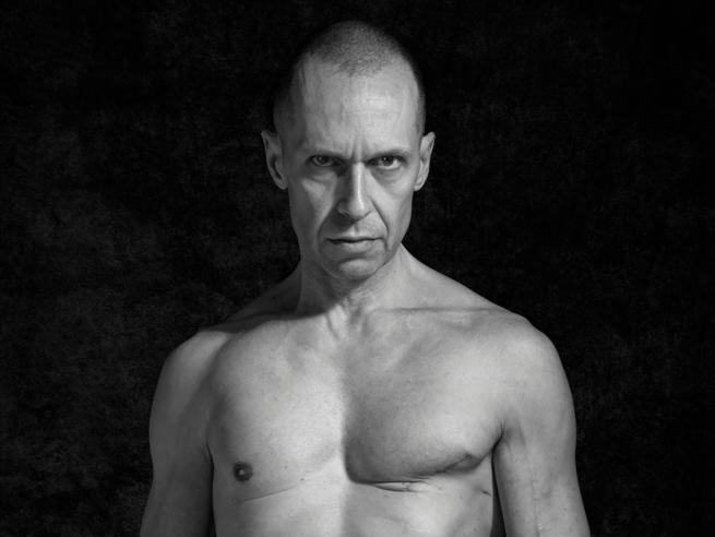 Stefano, 48 anni: «Ho avuto un cancro al seno e vi mostro le cicatrici»