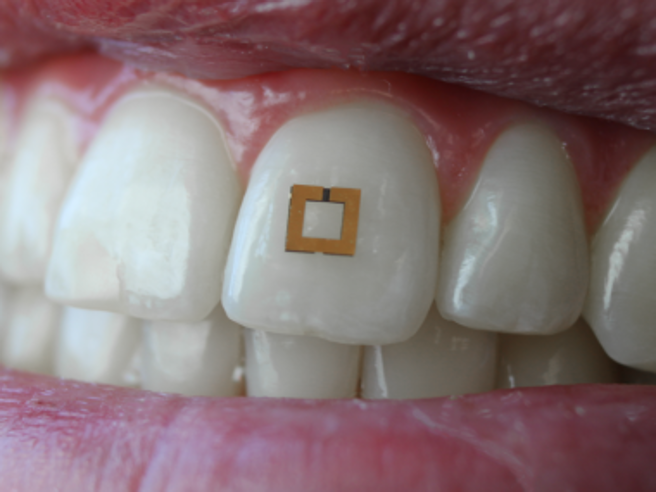 Lo strass sul dente? àˆ un biosensorein grado di analizzare ciಠche mangi