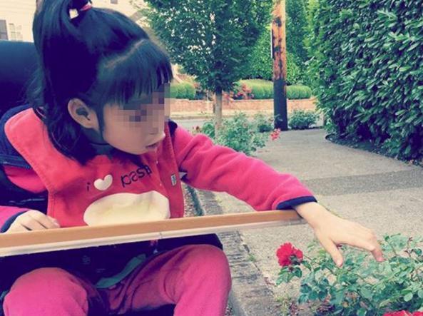 Yuna, la bimba colpita dalla malattia rarissima studiata dalla mamma: la storia