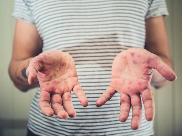 Morbillo: focolaio a Trieste, due nuovi casi