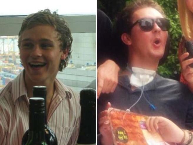 Paralizzato dopo aver mangiato una lumaca: muore a 28 anni