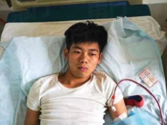 Vende un rene per comprarsi un iPhone, ma rimane invalido a vita
