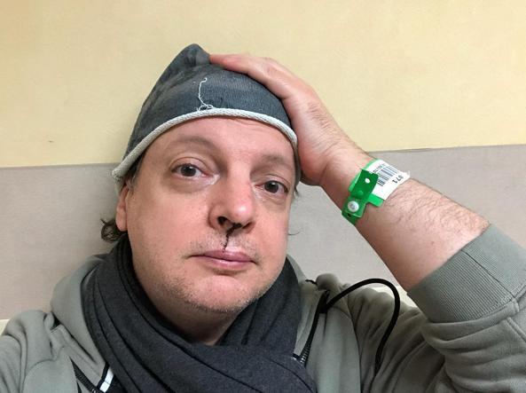 Paura per Dado: il comico picchiato dall'ex della figlia