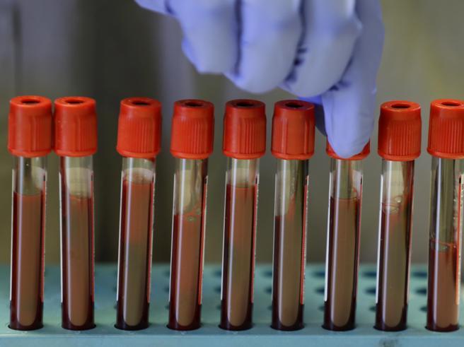 Covid, passi avanti per un vaccino: positivi i primi test sull'uomo
