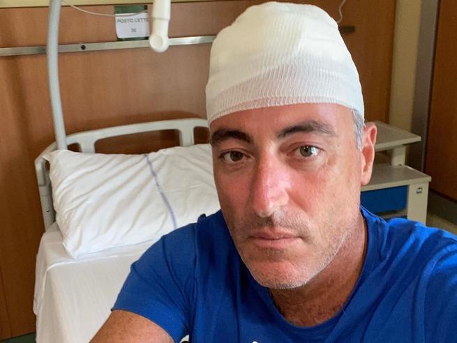 Giulio Gallera ferito alla testa durante una vacanza in Liguria