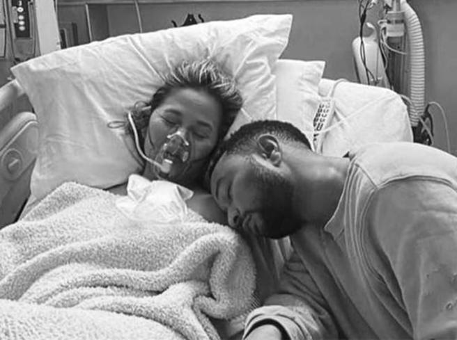 Chrissy Teigen e John Legend, le foto dopo l'aborto spontaneo
