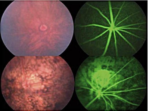 Un problema alla retina indice di una predisposizione al parkinson