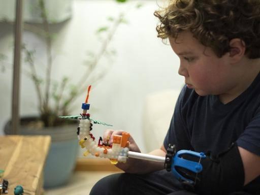 Buongiornolink - Aidan, il bimbo con la mano di Lego che ha progettato da solo