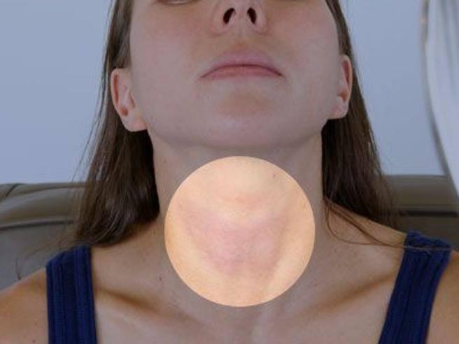 perchè si formano i noduli alla tiroide