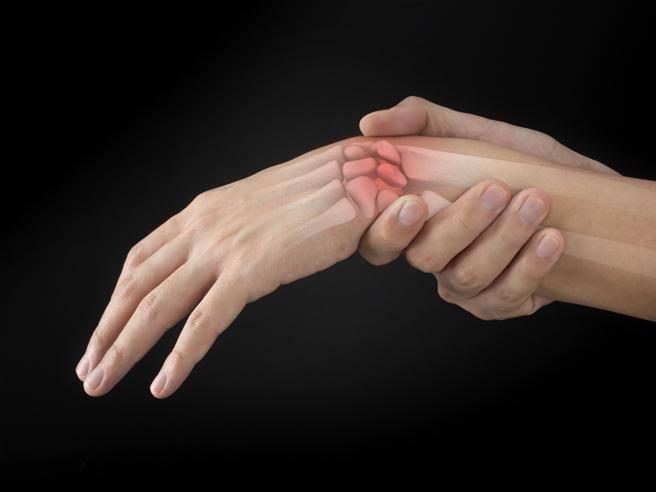 Dolore e gonfiore delle articolazioni delle dita a esordio improvviso. Sindromi da dolore agli arti