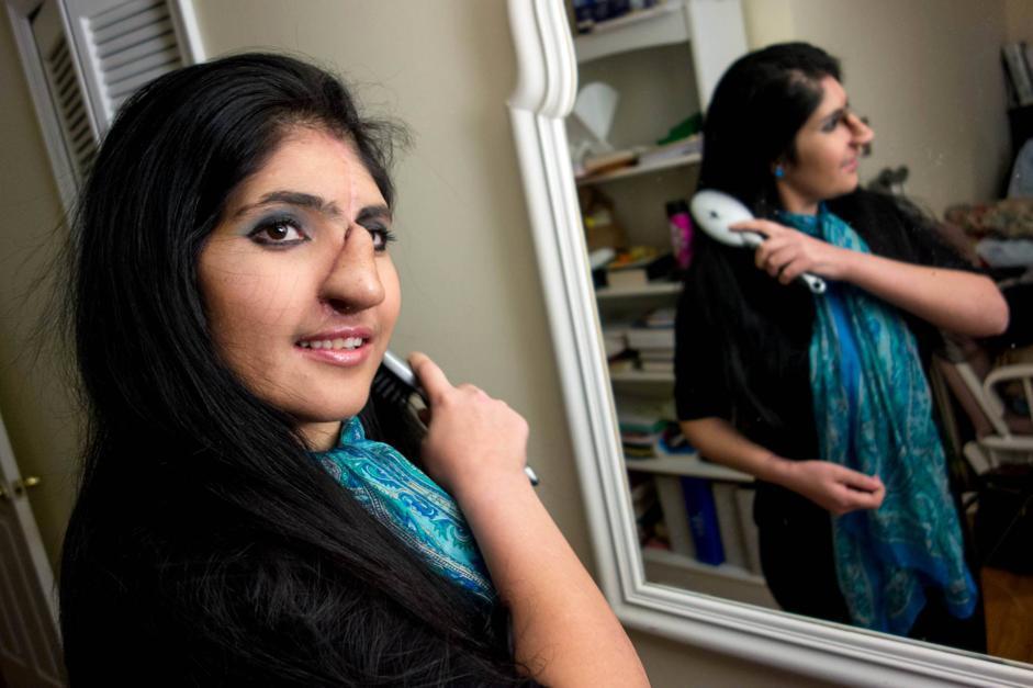 ragazza afgana senza naso