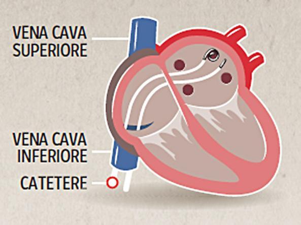 Primi appuntamenti di scansione battito cardiaco