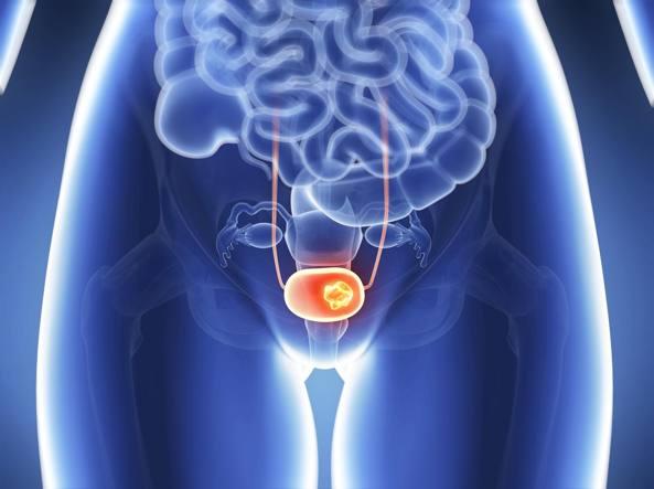papilloma alla vescica nelle donne sintomi