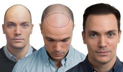 Perdita capelli uomo forum