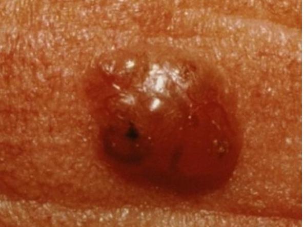 Un basalioma (foto «The american academy of dermatology»)