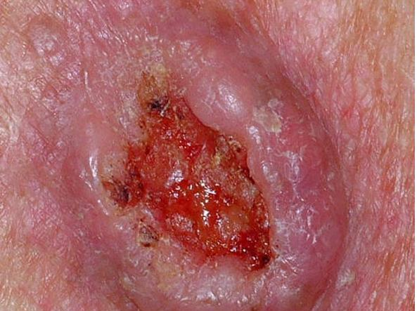 Spinalioma (foto «The skin cancer foundation»)