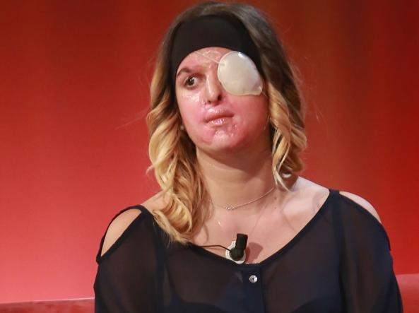 Woman Scarred with Acid by Ex-Boyfriend Appears on TV - Corriere it