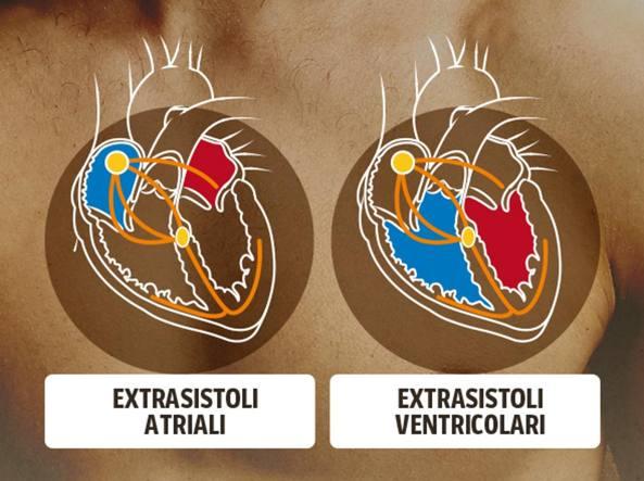 Extrasistole A Letto.Il Cuore Perde Un Colpo La Sensazione Di Un Tonfo