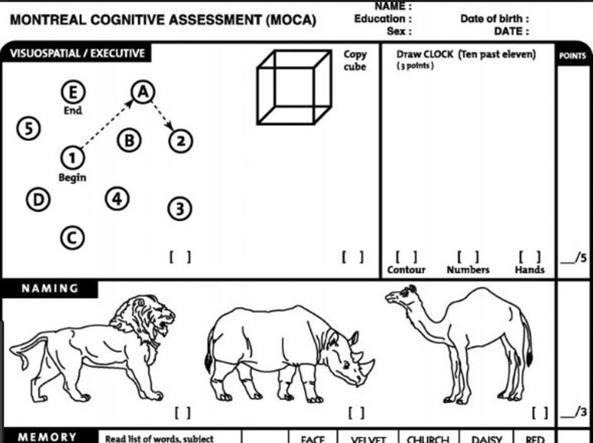Che Cose Il Montreal Cognitive Assessment E Come Funziona
