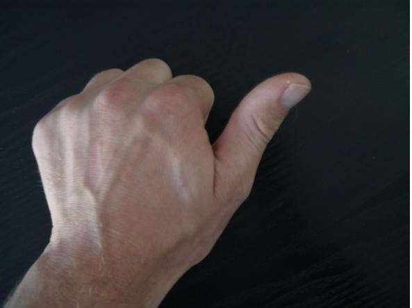 Dolore e gonfiore del dito