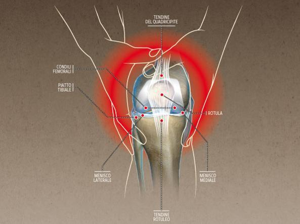 Cosa c'è da sapere sul crepitio del ginocchio?