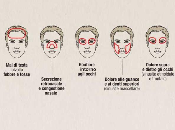 Sinusite, quali sono i sintomi? Come riconoscerla e..