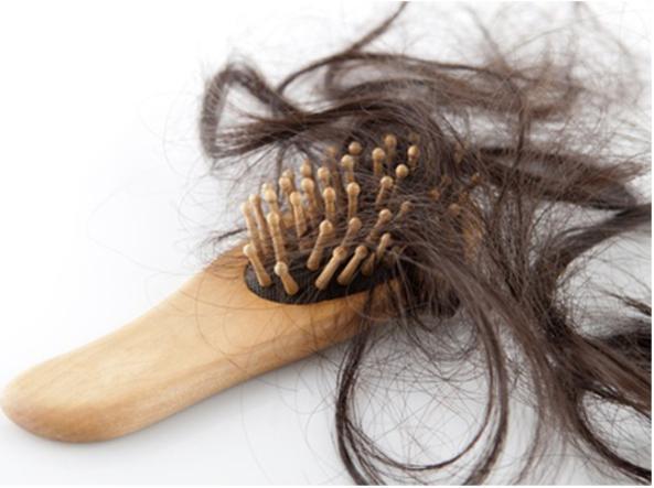 Perdita di ciocche di capelli - Sifilide nella donna, i ...