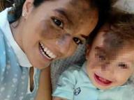 Nasce con una voglia sul viso, la madre se ne fa disegnare una uguale
