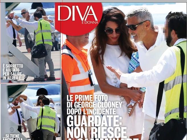 George Clooney, le prime foto dopo l'incidente in moto in Sardegna