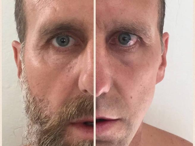 Poborsky ha preso la malattia di Lyme per colpa di una zecca nella barba