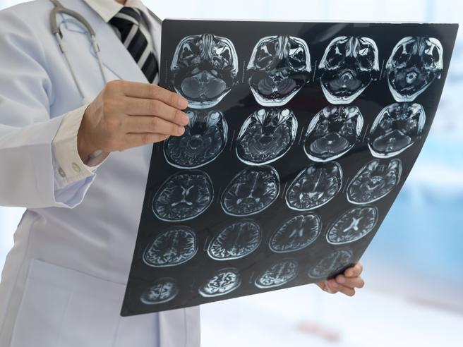 14 enne muore di tumore al cervello