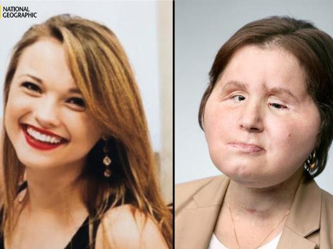 Katie, il tentato suicidio e la nuova  vita dopo il trapianto di faccia