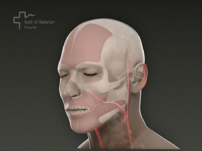 Primo trapianto di viso in Italiaall'ospedale Sant'Andrea