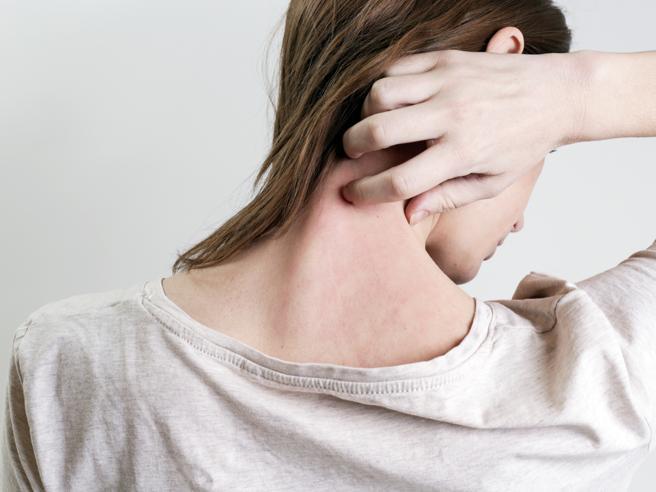 Le nuove cure per la psoriasi sono gratuite solo per chi è grave, è giusto?