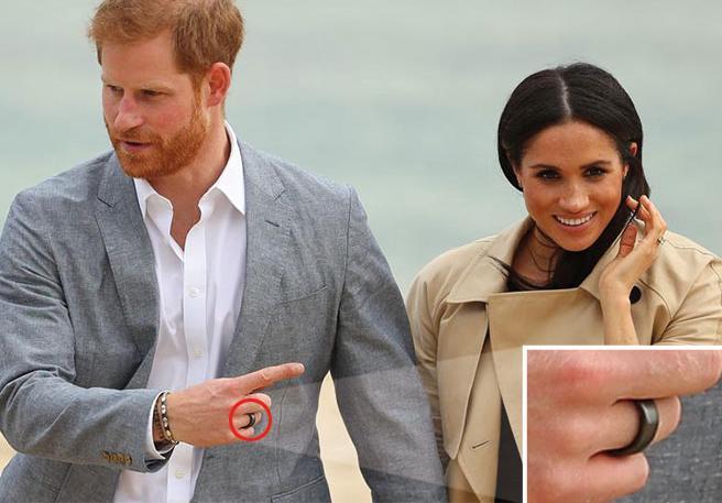 Il principe Harry e il mistero dell'anello nero apparso al suo dito