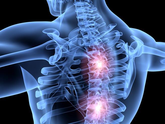 Quegli strani dolori (che a volte partono dalla colonna vertebrale)