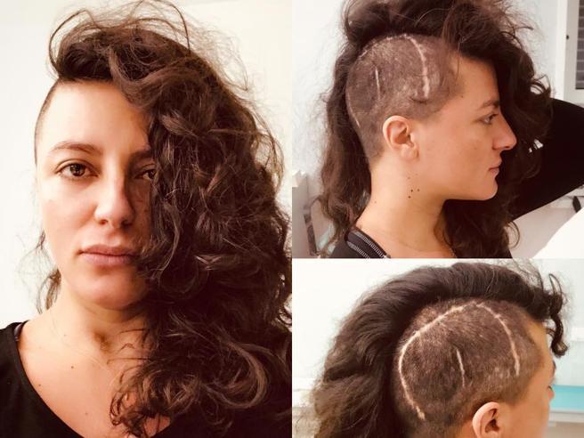Clio Evans, la moglie di Lele dei «Negramaro» svela il suo dramma: «Ecco la mia cicatrice»