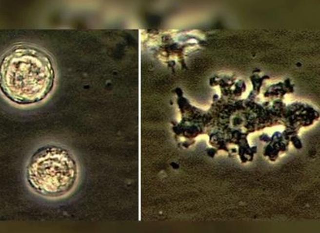 Acqua di casa per i lavaggi nasali:  muore per ameba mangia-cervello