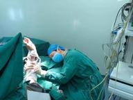 Chirurgo si addormenta dopo l'operazione tenendo su il braccio che ha appena riattaccato