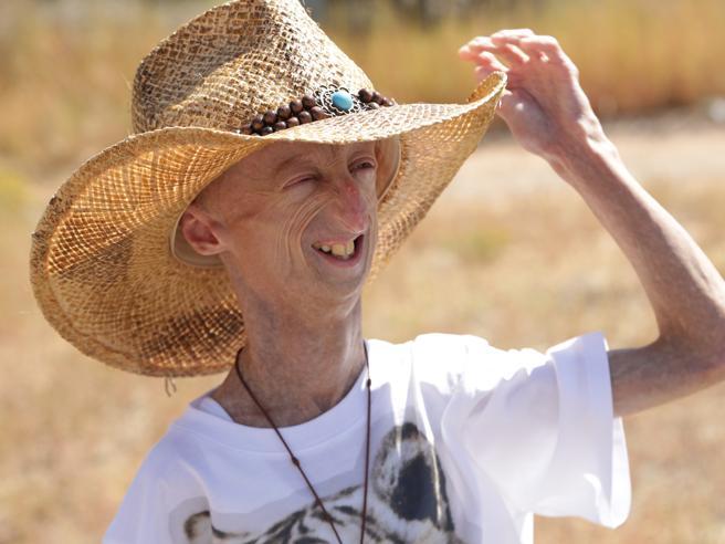 Sammy operato  con successo al cuore: «In sala operatoria ho capito che mi giocavo tutto» Cos'è la progeria