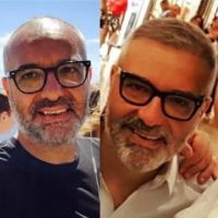 Com'erano e come sono dopo il trapianto di capelli (in Turchia)